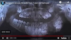 (Video) Dječaku (7) su izvadili 80 zuba u operaciji koja je trajala 4 sat