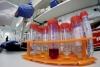 I u FBiH jedno oboljelo: Pacijentica iz Orašja pozitivna je na korona virus
